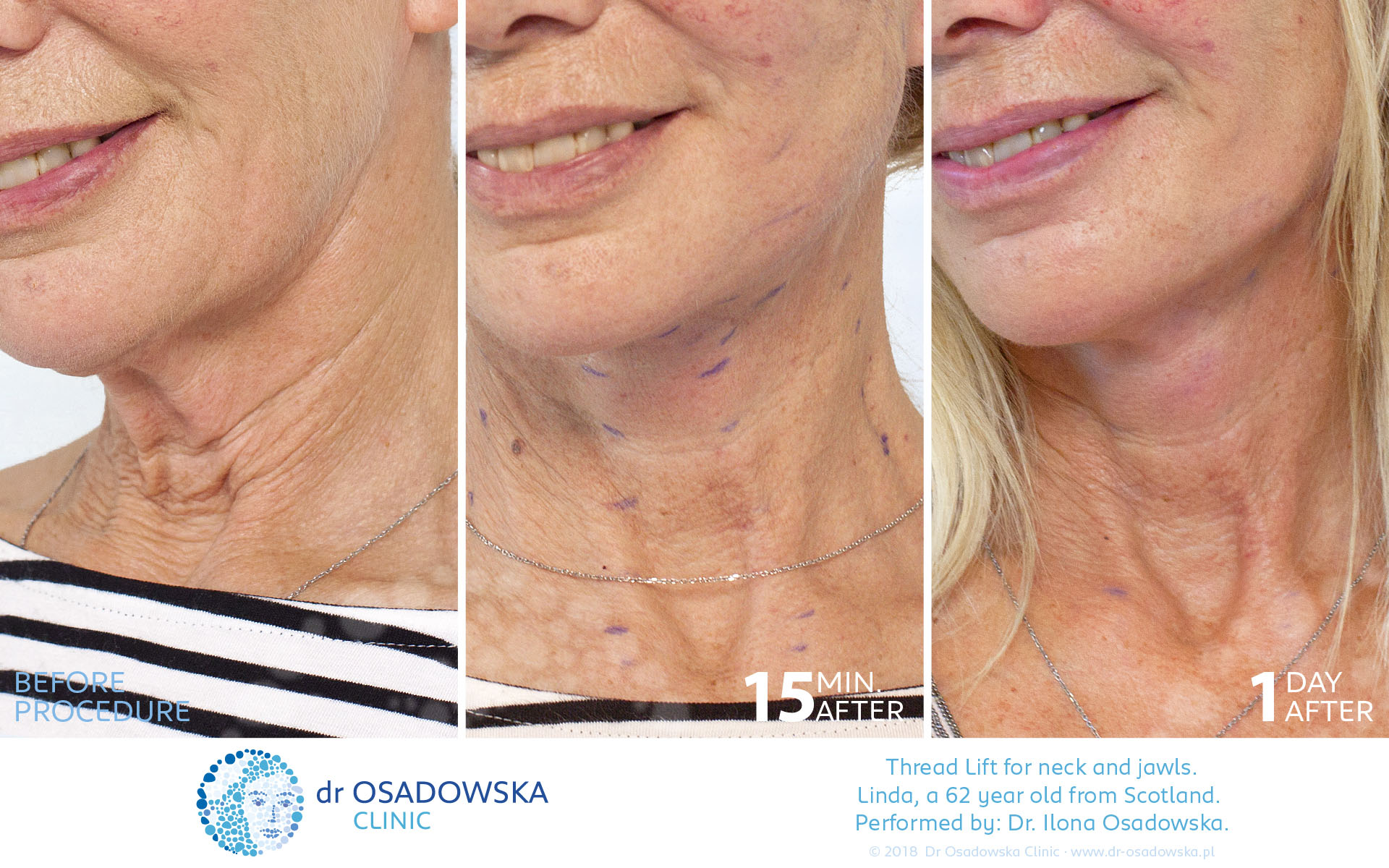 Real photos Neck and jawls - Thread Lift, Aptos - Dr
